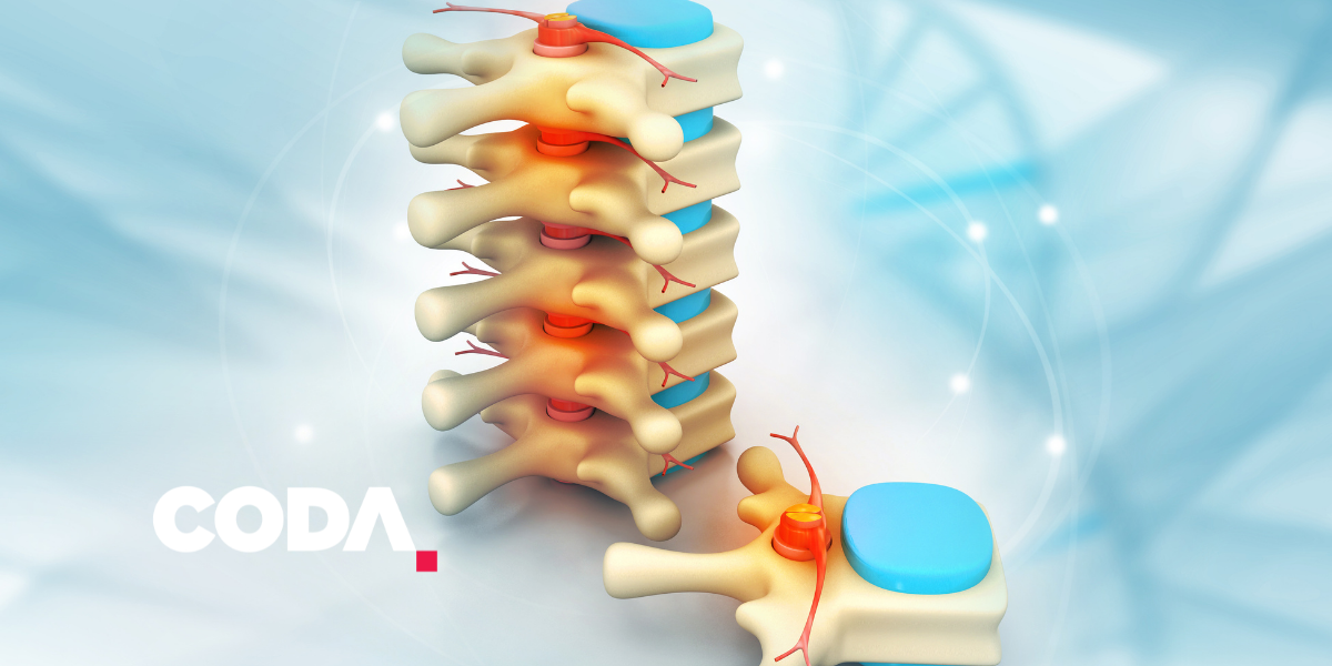 Surgical considerations in the injured spine patient